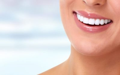Why People Choose Veneers in Princeton