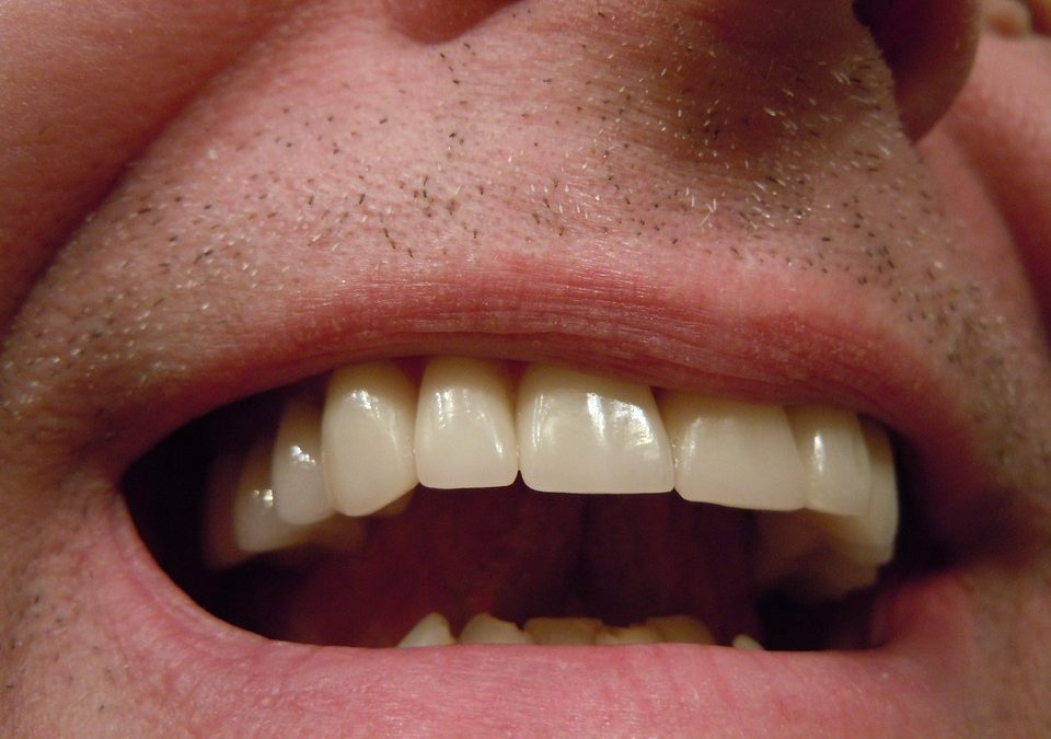 How Much Does A Tooth Crown Cost?