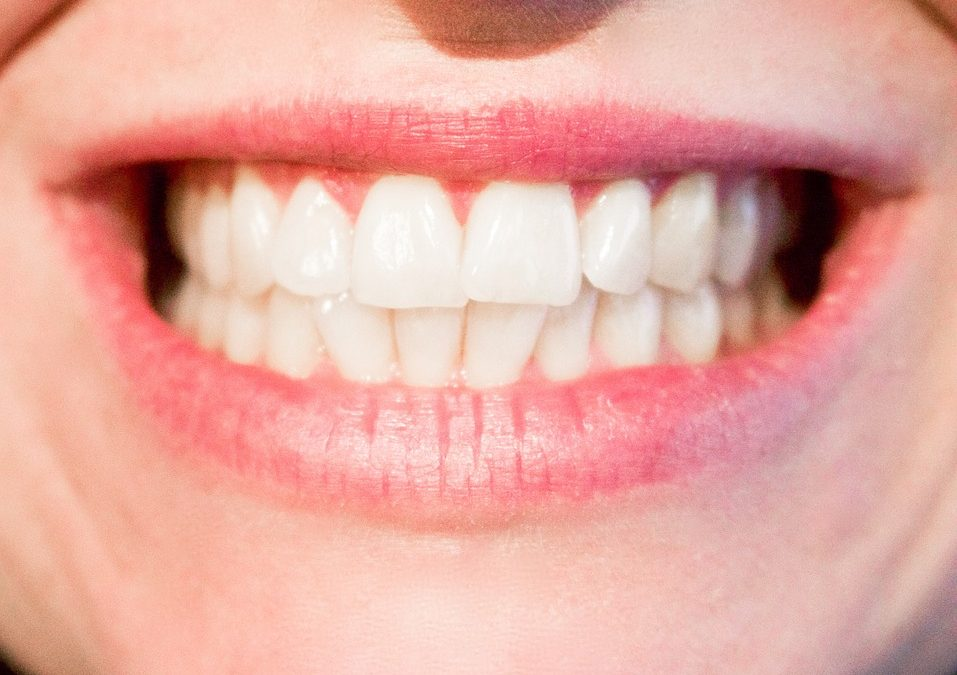Dental Crowns in Princeton, NJ: What to Expect from Your Princeton Dentist