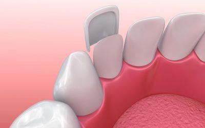 Benefits of Dental Crowns vs. Veneers