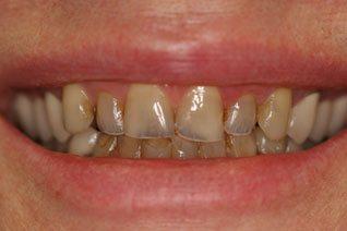 Yellow teeth problem at Princeton NJ